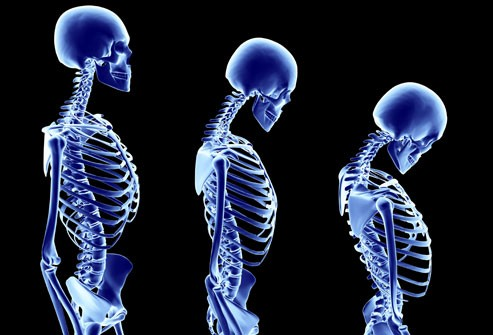 Bone Density Clinic Sat 19th November